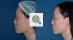 b_150_80_16777215_01_images_lipofiling_2.jpg