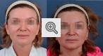 b_150_80_16777215_01_images_omologenie_fibroblastami_1.jpg