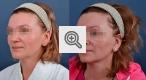 b_150_80_16777215_01_images_omologenie_fibroblastami_3.jpg
